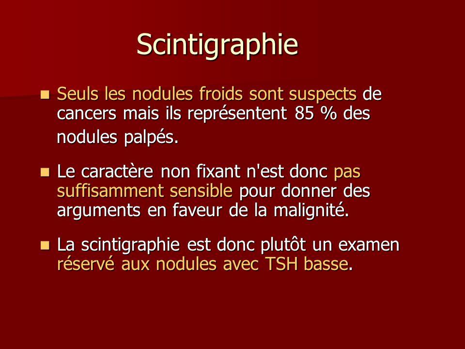 Scintigraphie Seuls les nodules froids sont suspects de cancers mais ils représentent 85 % des Seuls les nodules froids sont suspects de cancers mais