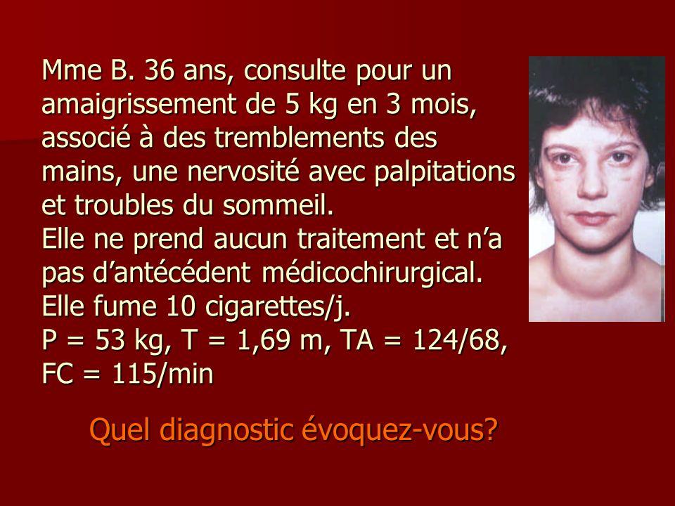 Mme B. 36 ans, consulte pour un amaigrissement de 5 kg en 3 mois, associé à des tremblements des mains, une nervosité avec palpitations et troubles du