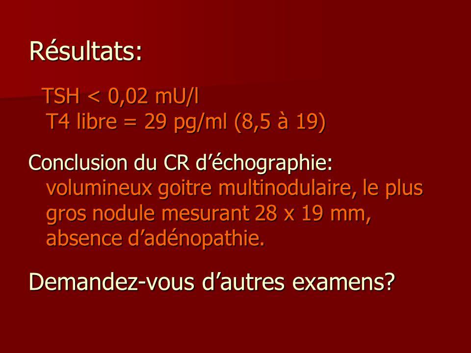 Résultats: TSH < 0,02 mU/l T4 libre = 29 pg/ml (8,5 à 19) TSH < 0,02 mU/l T4 libre = 29 pg/ml (8,5 à 19) Conclusion du CR déchographie: volumineux goi