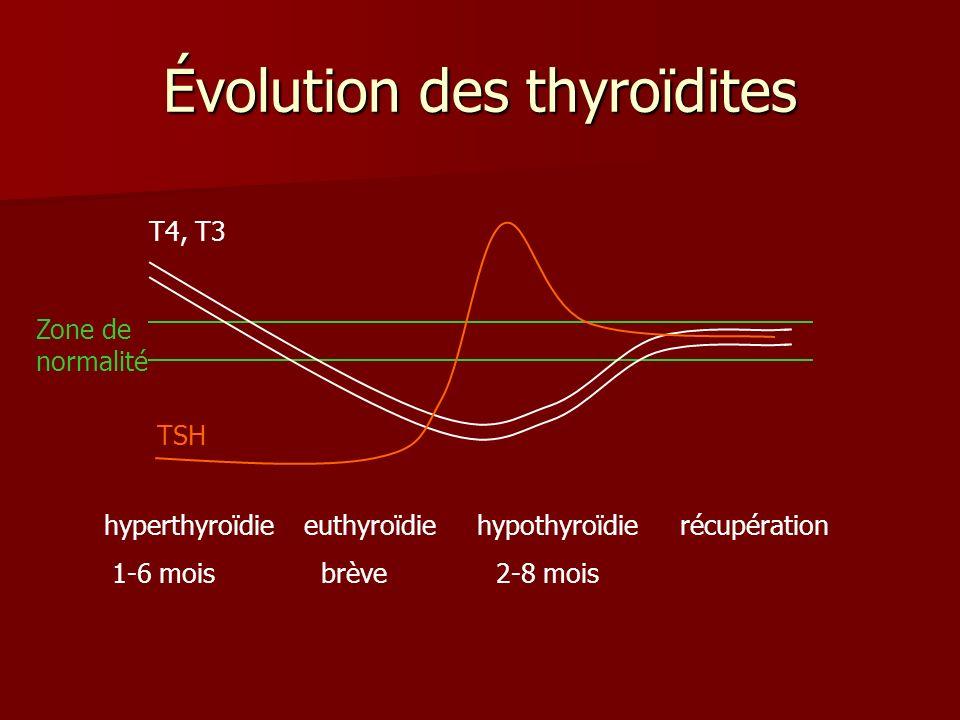 Évolution des thyroïdites TSH T4, T3 Zone de normalité hyperthyroïdie euthyroïdie hypothyroïdierécupération 1-6 mois brève 2-8 mois