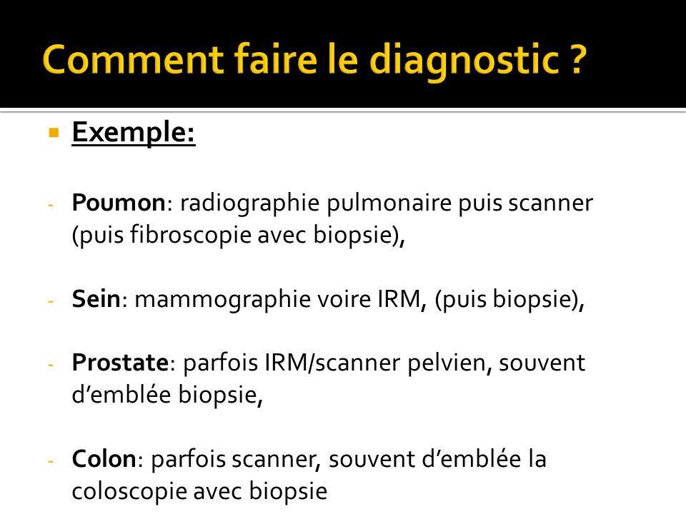 Exemple: - Poumon: radiographie pulmonaire puis scanner (puis fibroscopie avec biopsie), - Sein: mammographie voire IRM, (puis biopsie), - Prostate: p