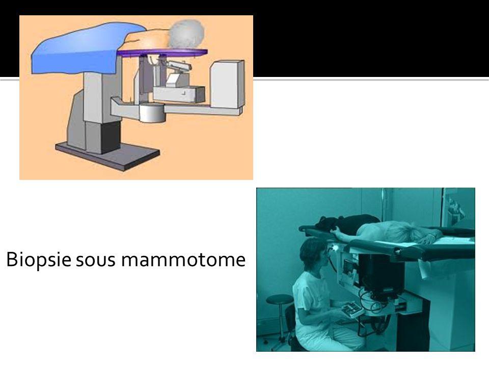Biopsie sous mammotome