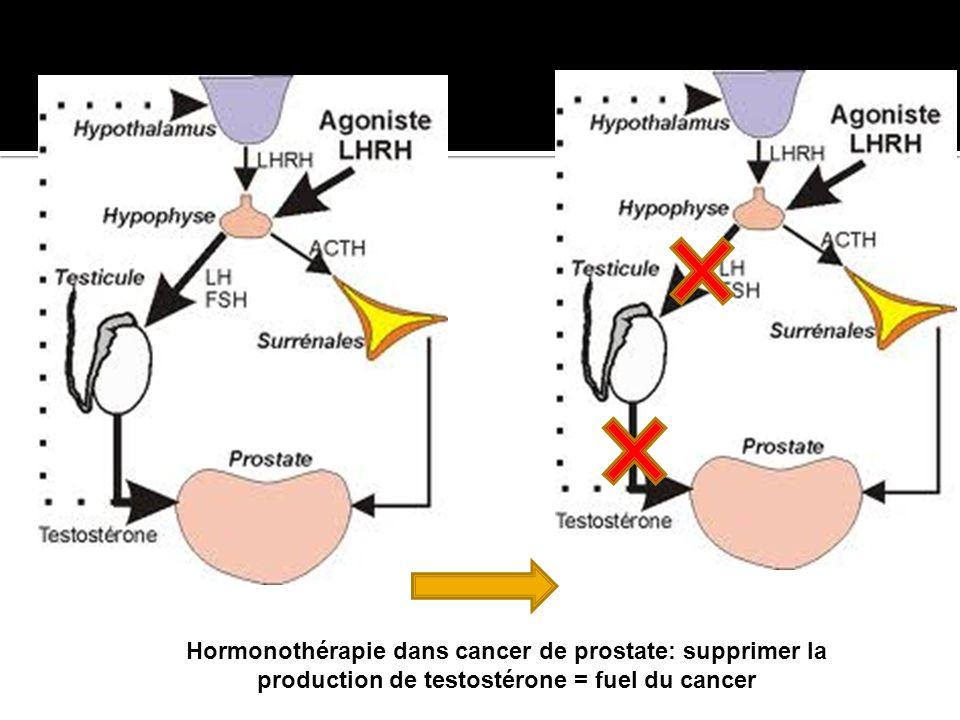 Hormonothérapie dans cancer de prostate: supprimer la production de testostérone = fuel du cancer