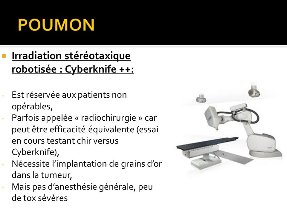 Irradiation stéréotaxique robotisée : Cyberknife ++: - Est réservée aux patients non opérables, - Parfois appelée « radiochirurgie » car peut être eff