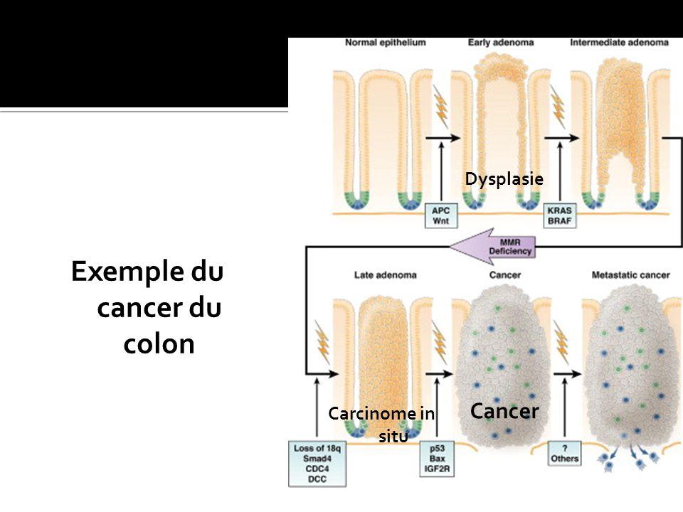 Exemple du cancer du colon Dysplasie Carcinome in situ Cancer