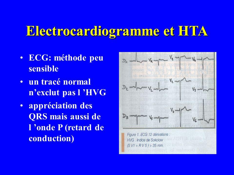 Electrocardiogramme et HTA ECG: méthode peu sensible un tracé normal nexclut pas l HVG appréciation des QRS mais aussi de l onde P (retard de conducti