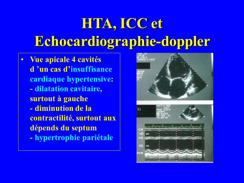 Vue apicale 4 cavités d un cas dinsuffisance cardiaque hypertensive: - dilatation cavitaire, surtout à gauche - diminution de la contractilité, surtou