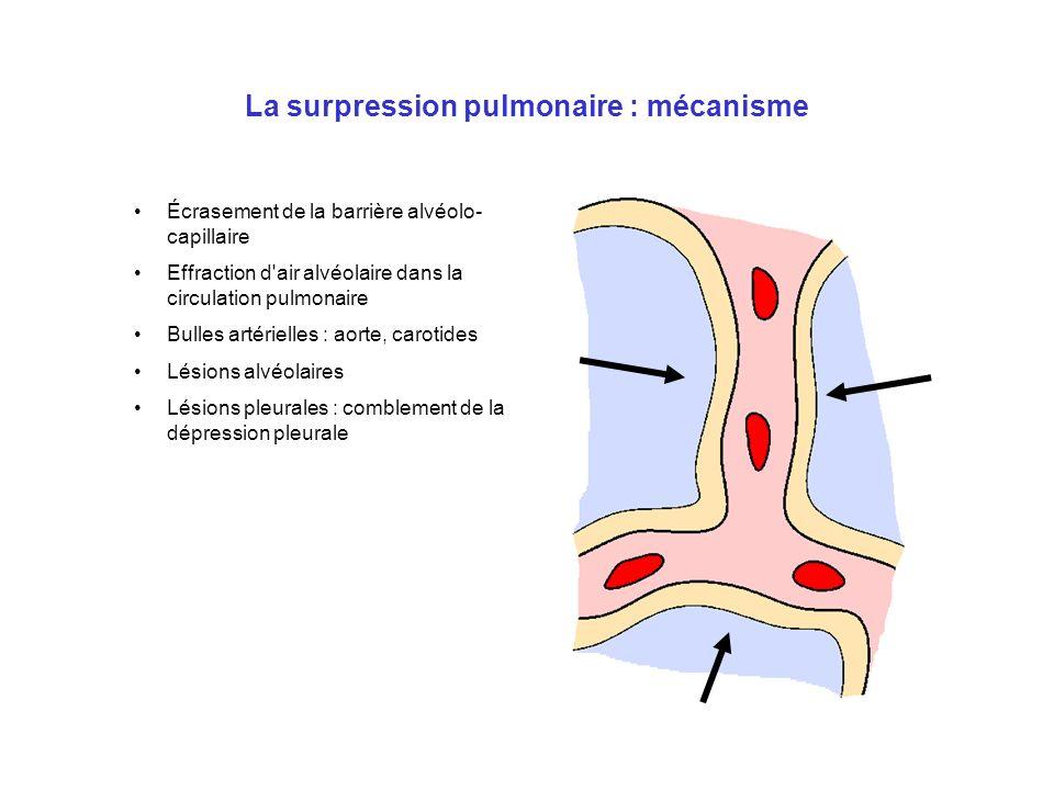 La surpression pulmonaire : mécanisme Écrasement de la barrière alvéolo- capillaire Effraction d'air alvéolaire dans la circulation pulmonaire Bulles