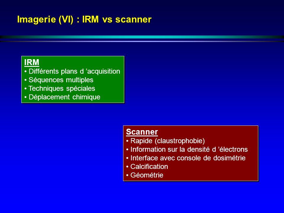 Imagerie (VI) : IRM vs scanner IRM Différents plans d acquisition Séquences multiples Techniques spéciales Déplacement chimique IRM Différents plans d acquisition Séquences multiples Techniques spéciales Déplacement chimique Scanner Rapide (claustrophobie) Information sur la densité d électrons Interface avec console de dosimétrie Calcification Géométrie Scanner Rapide (claustrophobie) Information sur la densité d électrons Interface avec console de dosimétrie Calcification Géométrie