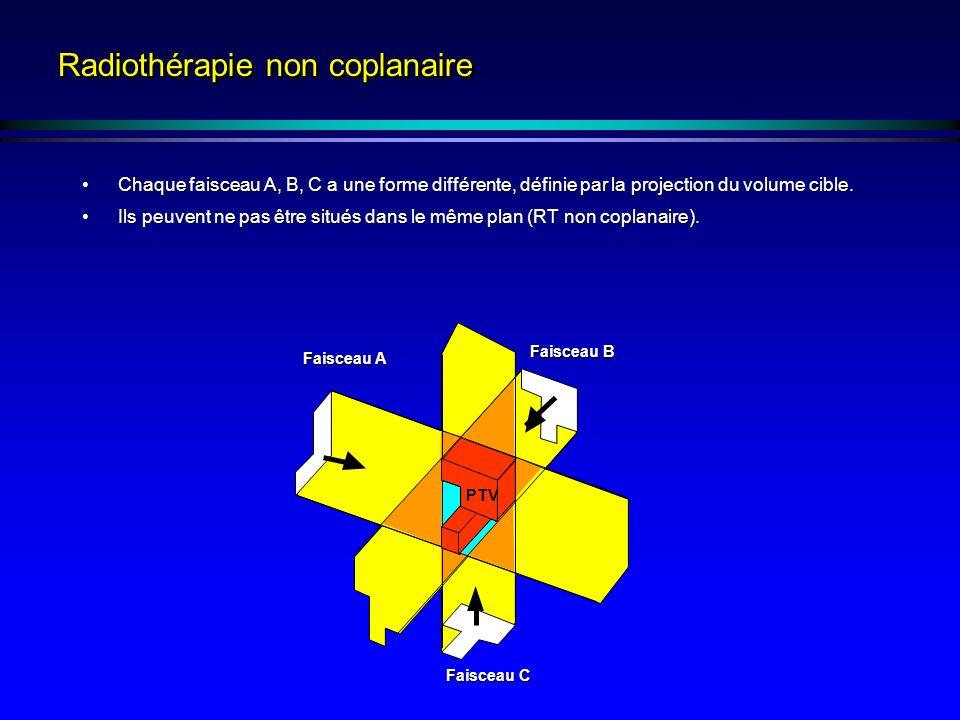 Radiothérapie non coplanaire Chaque faisceau A, B, C a une forme différente, définie par la projection du volume cible.Chaque faisceau A, B, C a une forme différente, définie par la projection du volume cible.