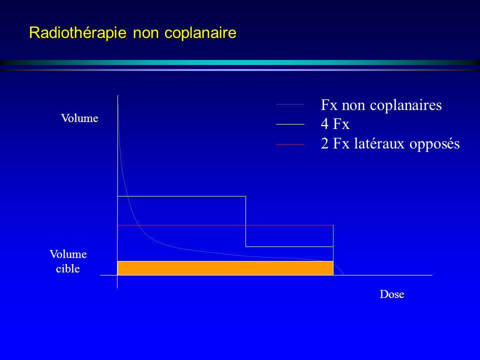 Radiothérapie non coplanaire Volume Volume cible Dose Fx non coplanaires 4 Fx 2 Fx latéraux opposés