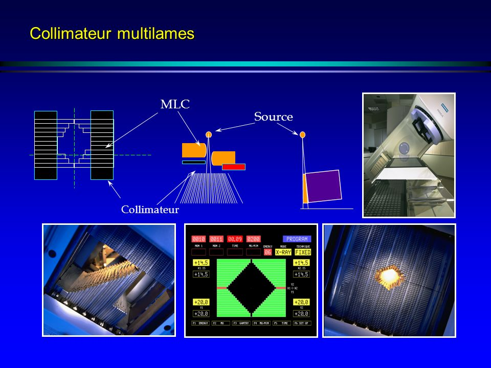 Collimateur multilames Collimateur Source MLC