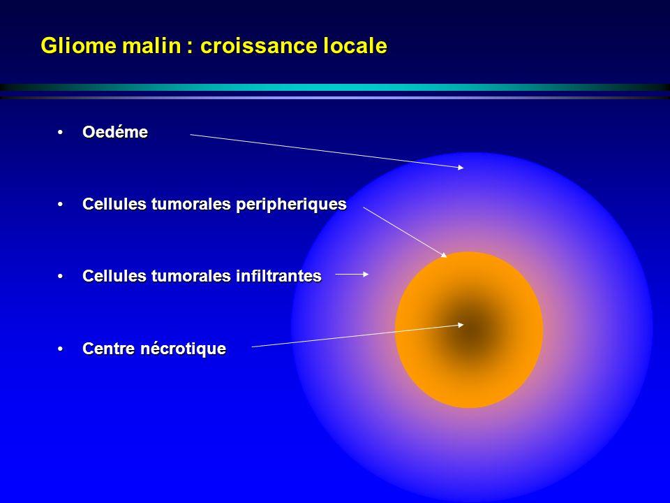 Gliome malin : croissance locale OedémeOedéme Cellules tumorales peripheriquesCellules tumorales peripheriques Cellules tumorales infiltrantesCellules