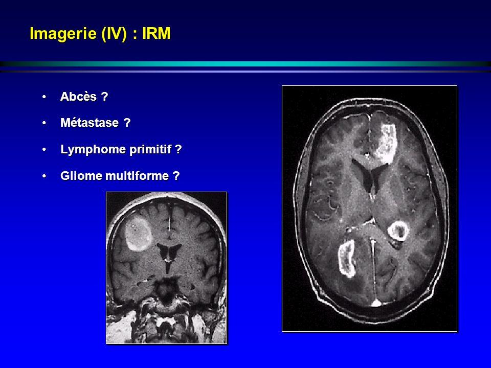 Imagerie (IV) : IRM Abcès ?Abcès ? Métastase ?Métastase ? Lymphome primitif ?Lymphome primitif ? Gliome multiforme ?Gliome multiforme ?