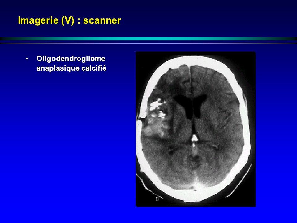 Imagerie (V) : scanner Oligodendrogliome anaplasique calcifiéOligodendrogliome anaplasique calcifié