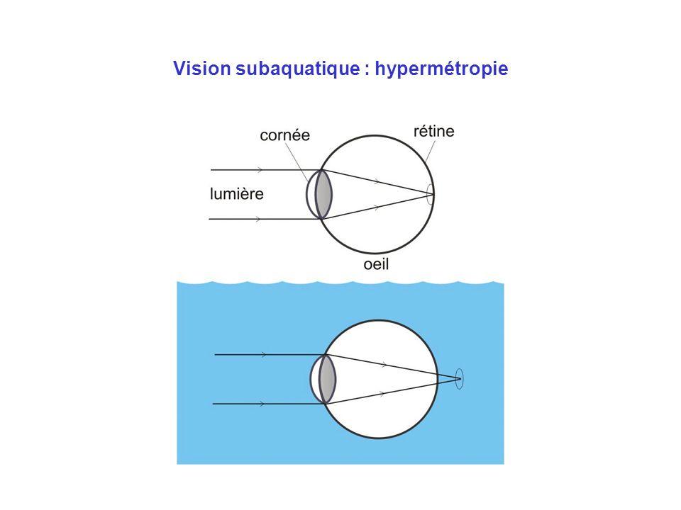 Vision subaquatique : hypermétropie