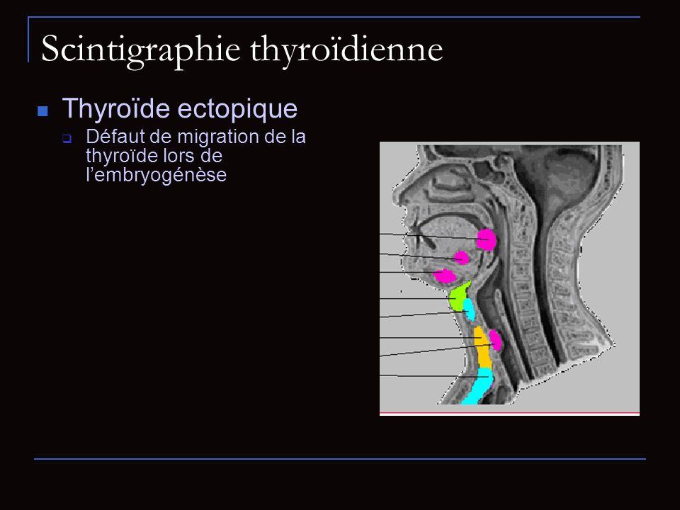 Scintigraphie thyroïdienne Thyroïde ectopique Défaut de migration de la thyroïde lors de lembryogénèse