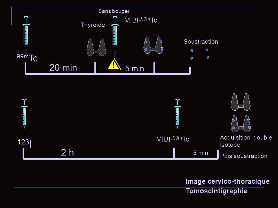 99m Tc MIBI- 99m Tc 20 min 5 min Thyroïde Soustraction Sans bouger Acquisition double isotope Puis soustraction 123 I MIBI- 99m Tc 2 h 5 min Image cer