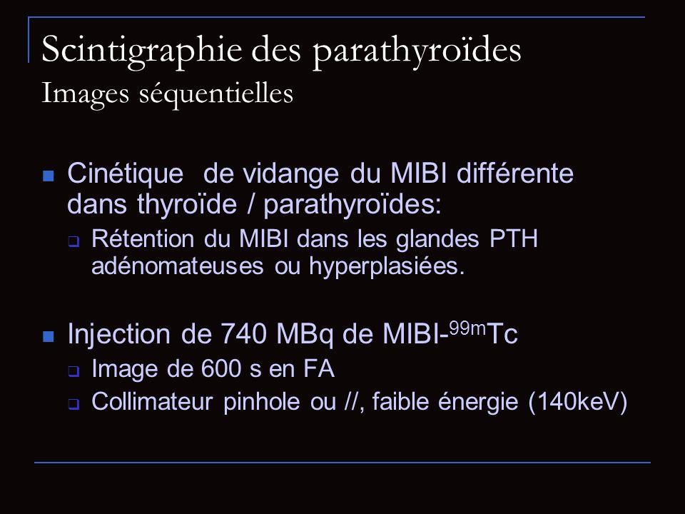 Scintigraphie des parathyroïdes Images séquentielles Cinétique de vidange du MIBI différente dans thyroïde / parathyroïdes: Rétention du MIBI dans les