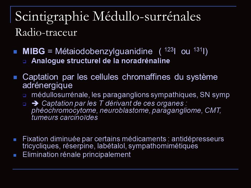 Scintigraphie Médullo-surrénales Radio-traceur MIBG = Métaiodobenzylguanidine ( 123 I ou 131 I) Analogue structurel de la noradrénaline Captation par