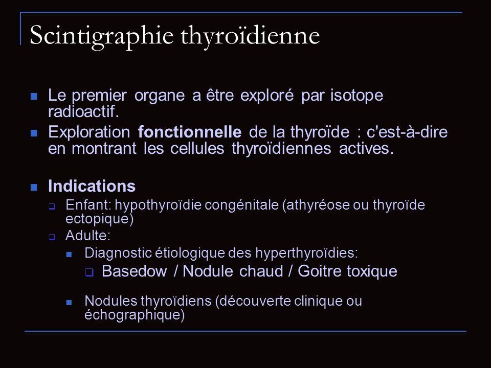 Scintigraphie thyroïdienne Le premier organe a être exploré par isotope radioactif. Exploration fonctionnelle de la thyroïde : c'est-à-dire en montran