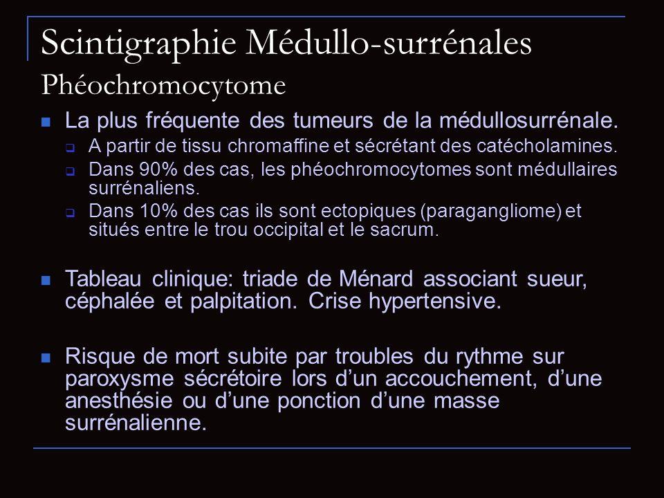 Scintigraphie Médullo-surrénales Phéochromocytome La plus fréquente des tumeurs de la médullosurrénale. A partir de tissu chromaffine et sécrétant des