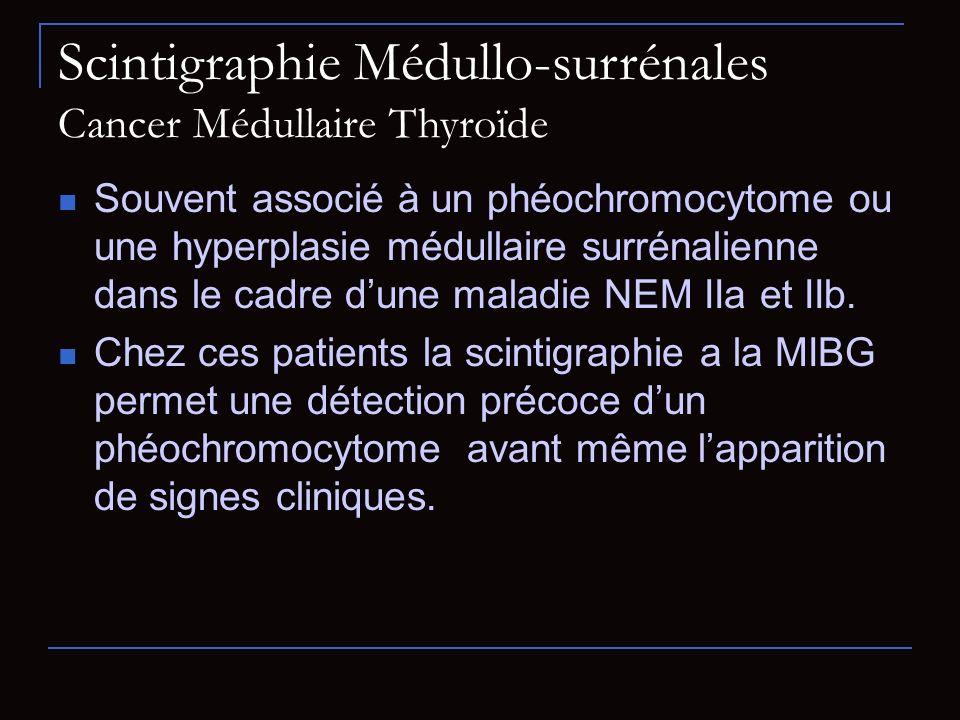 Scintigraphie Médullo-surrénales Cancer Médullaire Thyroïde Souvent associé à un phéochromocytome ou une hyperplasie médullaire surrénalienne dans le