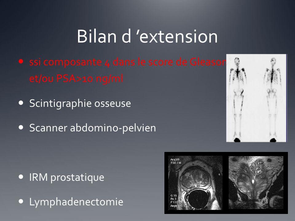 Bilan d extension ssi composante 4 dans le score de Gleason et/ou PSA>10 ng/ml Scintigraphie osseuse Scanner abdomino-pelvien IRM prostatique Lymphade