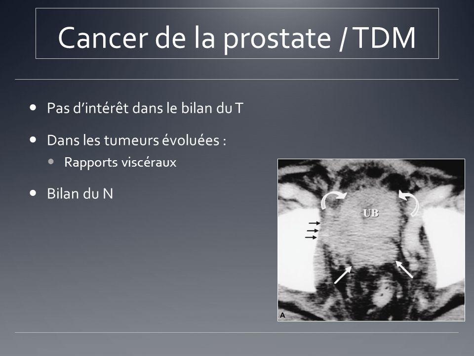 Cancer de la prostate / TDM Pas dintérêt dans le bilan du T Dans les tumeurs évoluées : Rapports viscéraux Bilan du N