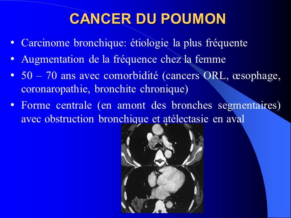 CANCER DU POUMON Carcinome bronchique: étiologie la plus fréquente Augmentation de la fréquence chez la femme 50 – 70 ans avec comorbidité (cancers ORL, œsophage, coronaropathie, bronchite chronique) Forme centrale (en amont des bronches segmentaires) avec obstruction bronchique et atélectasie en aval
