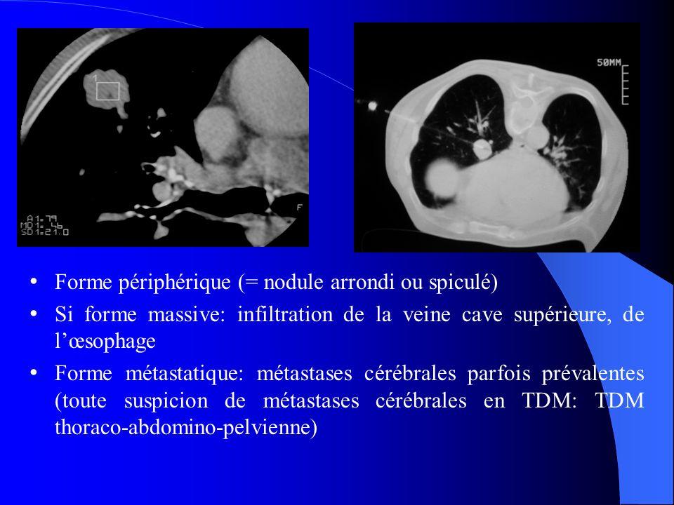 Forme périphérique (= nodule arrondi ou spiculé) Si forme massive: infiltration de la veine cave supérieure, de lœsophage Forme métastatique: métastases cérébrales parfois prévalentes (toute suspicion de métastases cérébrales en TDM: TDM thoraco-abdomino-pelvienne)