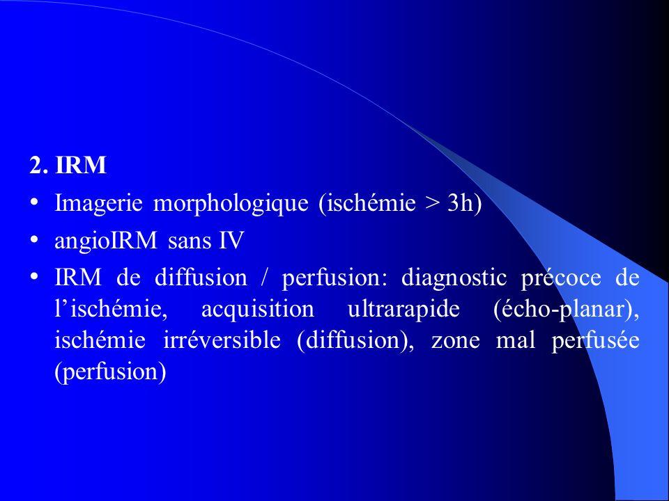 2. IRM Imagerie morphologique (ischémie > 3h) angioIRM sans IV IRM de diffusion / perfusion: diagnostic précoce de lischémie, acquisition ultrarapide