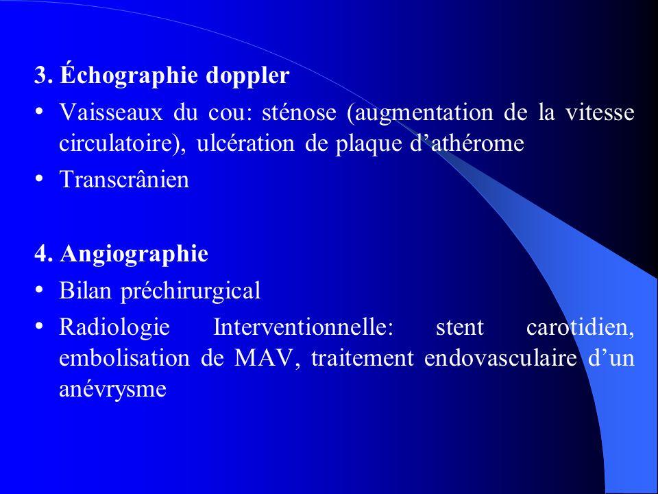 3. Échographie doppler Vaisseaux du cou: sténose (augmentation de la vitesse circulatoire), ulcération de plaque dathérome Transcrânien 4. Angiographi