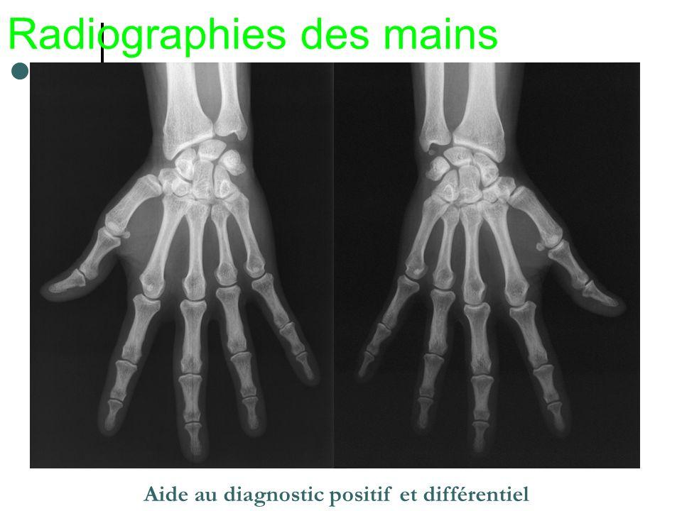 Radiographies des mains Aide au diagnostic positif et différentiel