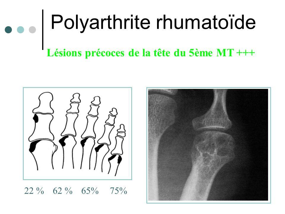 Polyarthrite rhumatoïde 22 %62 %65%75% Lésions précoces de la tête du 5ème MT +++