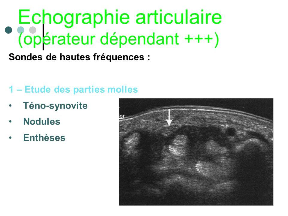 Echographie articulaire (opérateur dépendant +++) Sondes de hautes fréquences : 1 – Etude des parties molles Téno-synovite Nodules Enthèses