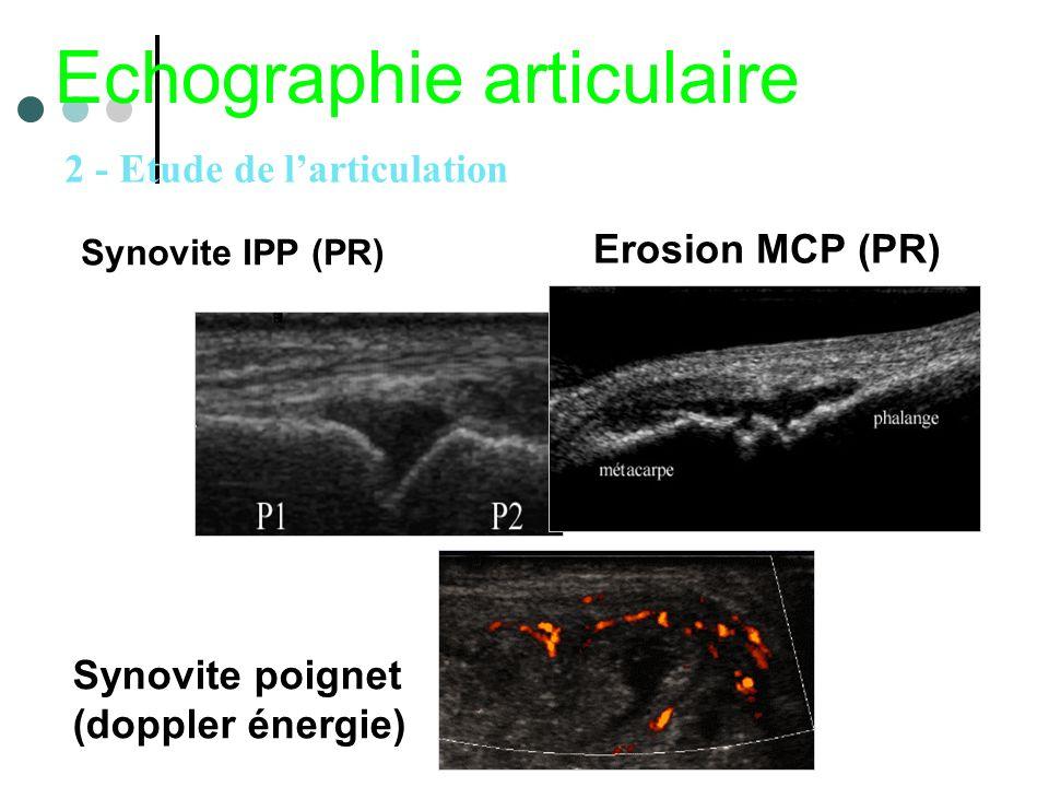 Synovite IPP (PR) Echographie articulaire Erosion MCP (PR) Synovite poignet (doppler énergie) 2 - Etude de larticulation