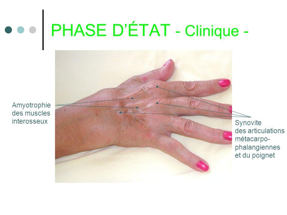 PHASE DÉTAT - Clinique - Synovite des articulations métacarpo- phalangiennes et du poignet Amyotrophie des muscles interosseux