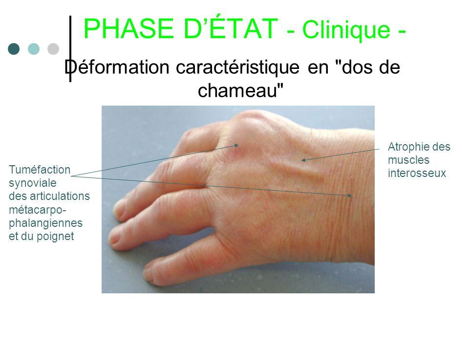 PHASE DÉTAT - Clinique - Déformation caractéristique en
