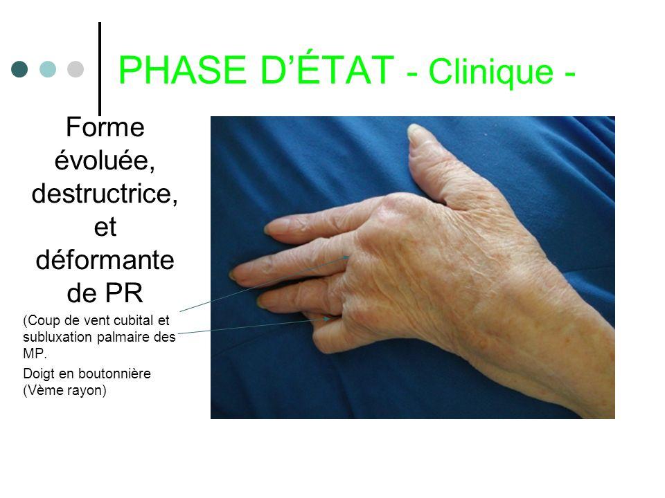 PHASE DÉTAT - Clinique - Forme évoluée, destructrice, et déformante de PR (Coup de vent cubital et subluxation palmaire des MP. Doigt en boutonnière (