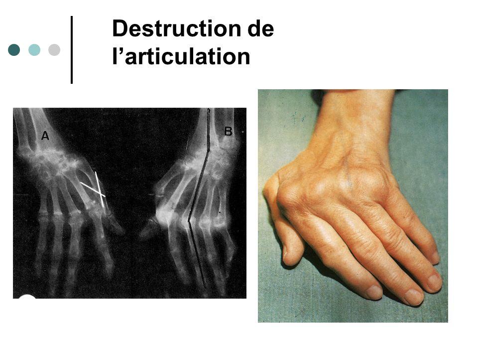 Destruction de larticulation