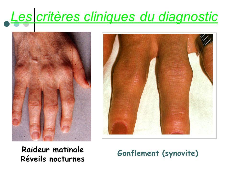 Les critères cliniques du diagnostic Raideur matinale Réveils nocturnes Gonflement (synovite)