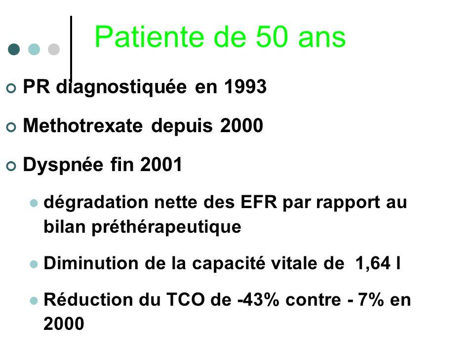 Patiente de 50 ans PR diagnostiquée en 1993 Methotrexate depuis 2000 Dyspnée fin 2001 dégradation nette des EFR par rapport au bilan préthérapeutique
