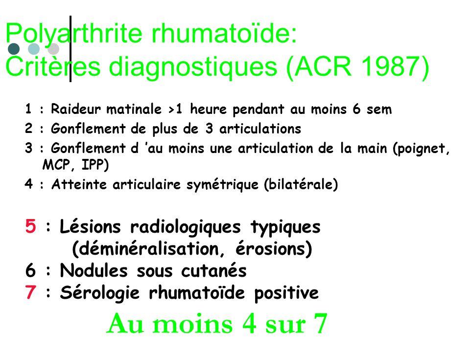Polyarthrite rhumatoïde: Critères diagnostiques (ACR 1987) 1 : Raideur matinale >1 heure pendant au moins 6 sem 2 : Gonflement de plus de 3 articulati