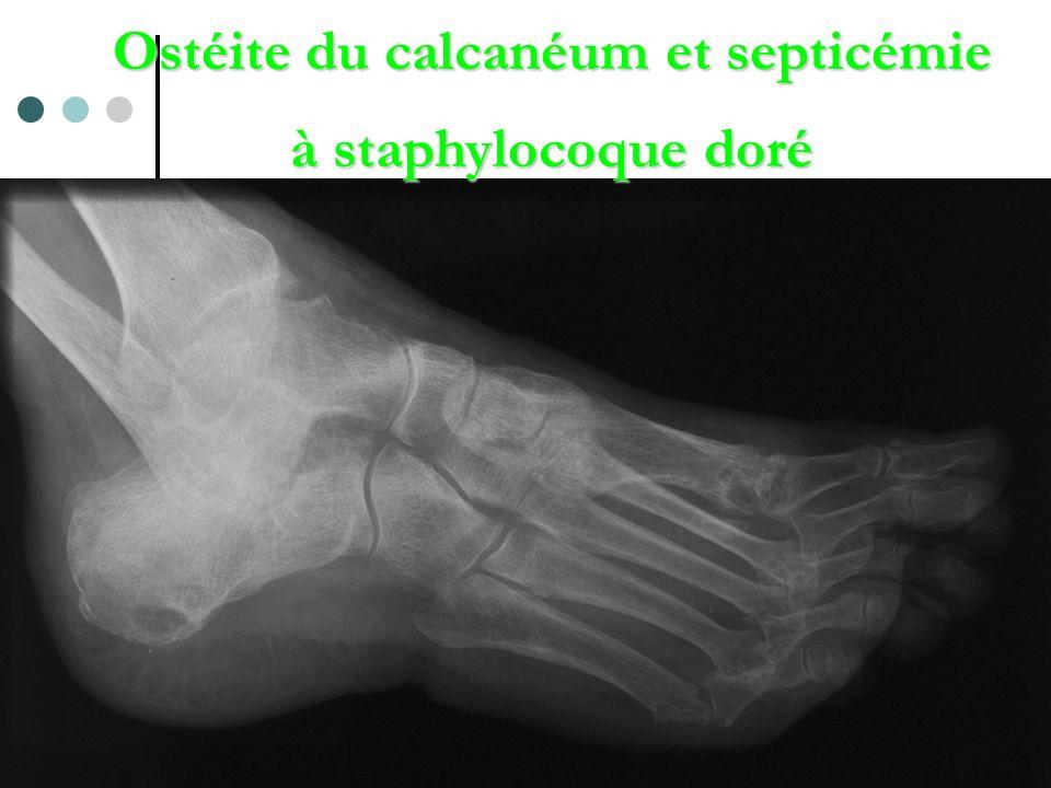 Ostéite du calcanéum et septicémie à staphylocoque doré