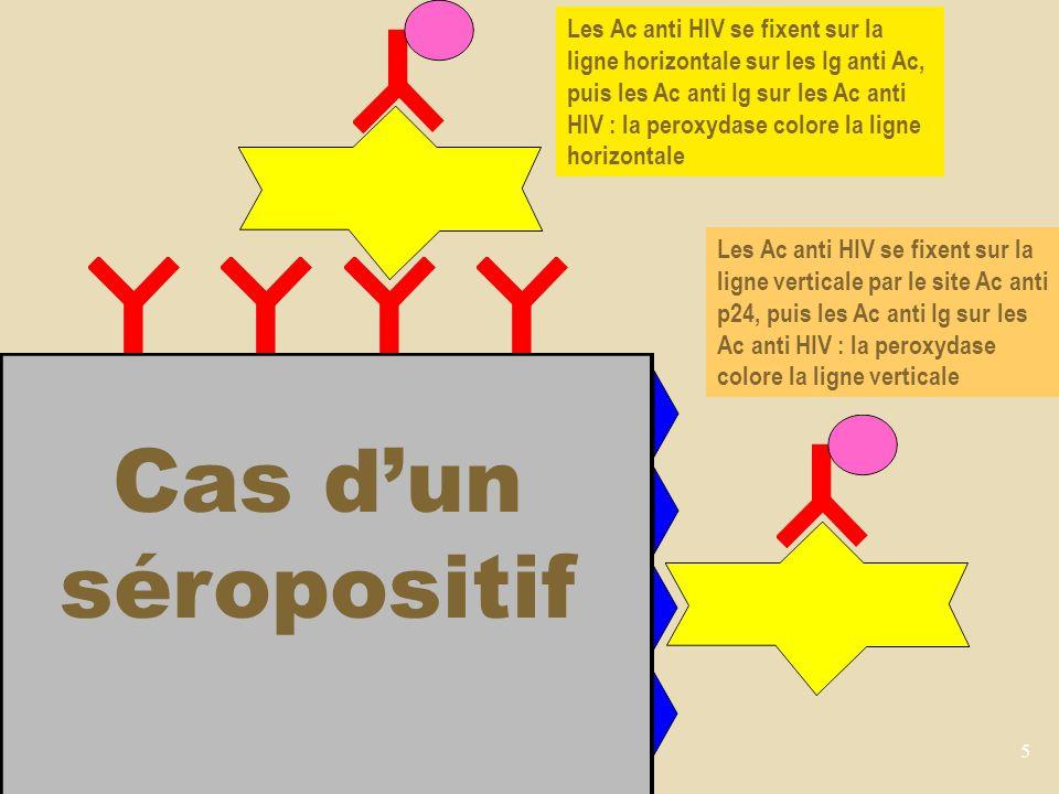 5 Cas dun séropositif Les Ac anti HIV se fixent sur la ligne horizontale sur les Ig anti Ac, puis les Ac anti Ig sur les Ac anti HIV : la peroxydase colore la ligne horizontale Les Ac anti HIV se fixent sur la ligne verticale par le site Ac anti p24, puis les Ac anti Ig sur les Ac anti HIV : la peroxydase colore la ligne verticale