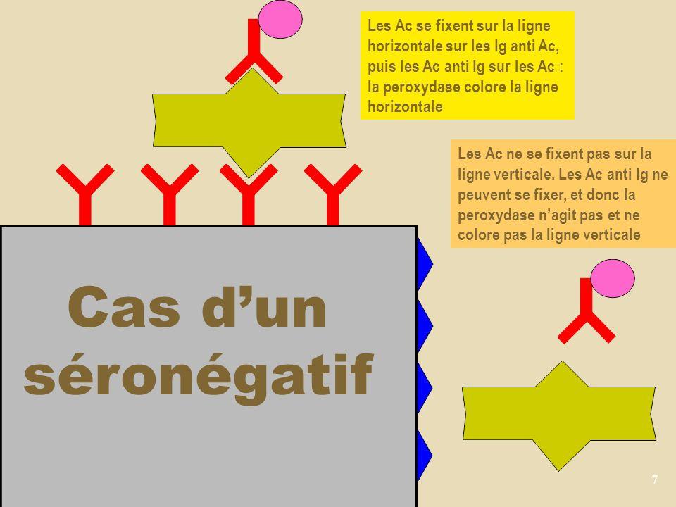 7 Cas dun séronégatif Les Ac se fixent sur la ligne horizontale sur les Ig anti Ac, puis les Ac anti Ig sur les Ac : la peroxydase colore la ligne horizontale Les Ac ne se fixent pas sur la ligne verticale.