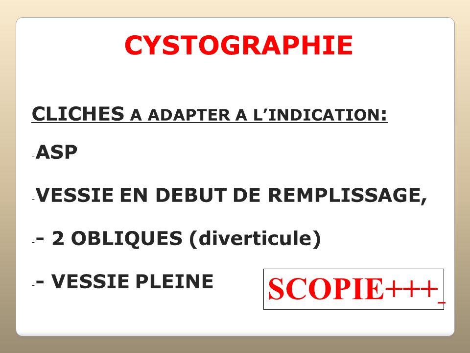 CYSTOGRAPHIE CLICHES A ADAPTER A LINDICATION : - ASP - VESSIE EN DEBUT DE REMPLISSAGE, - - 2 OBLIQUES (diverticule) - - VESSIE PLEINE SCOPIE+++