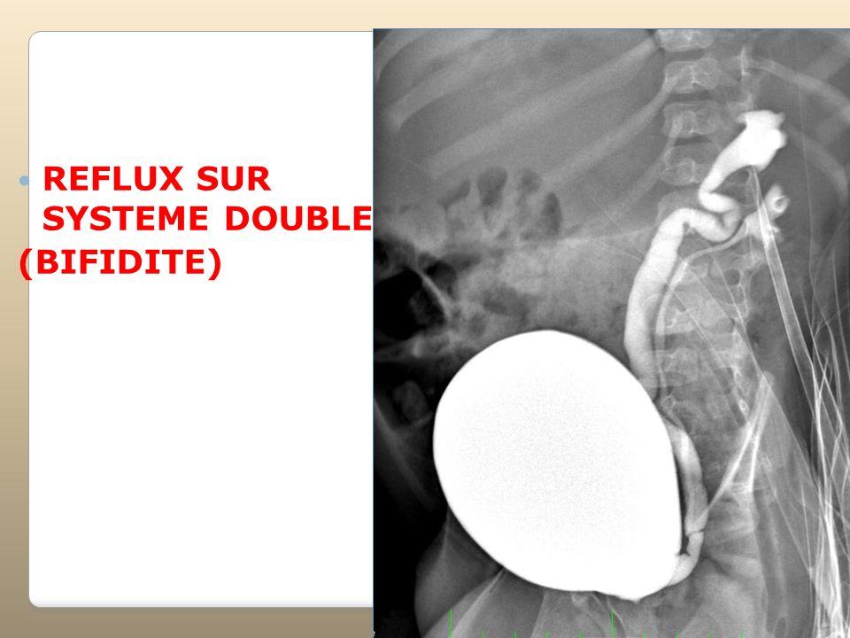 REFLUX SUR SYSTEME DOUBLE (BIFIDITE)