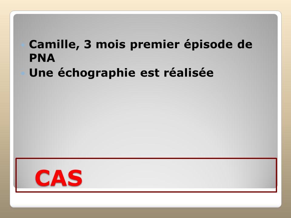 CAS Camille, 3 mois premier épisode de PNA Une échographie est réalisée